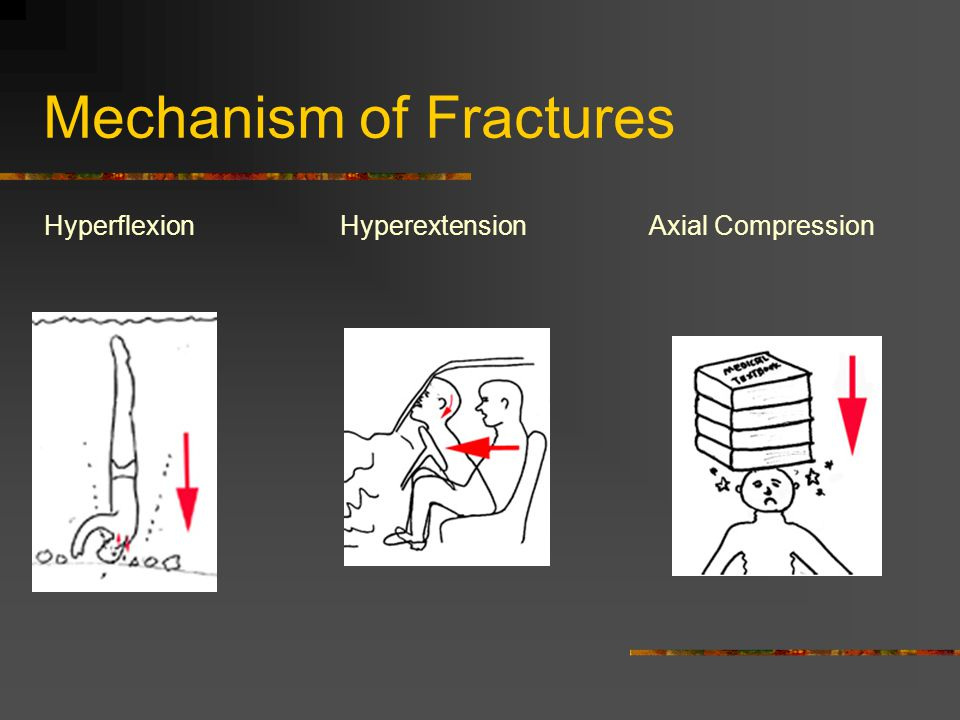Mechanism of Fractures