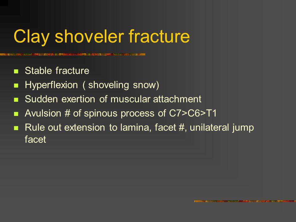 Clay shoveler fracture