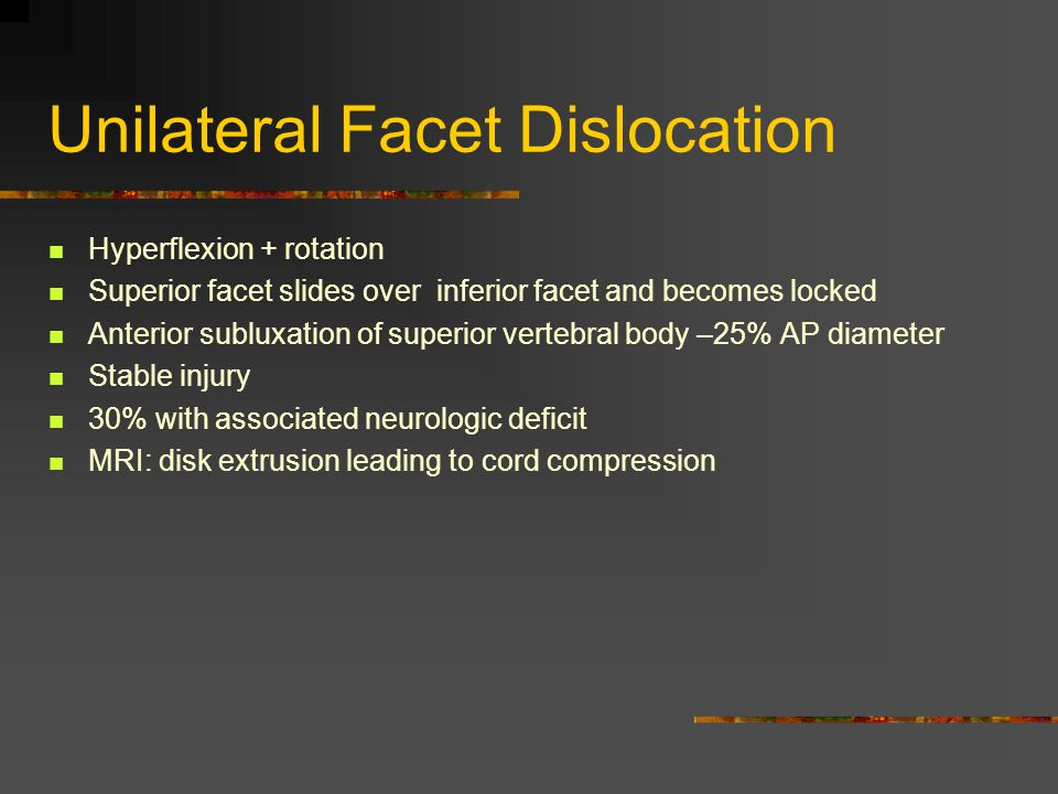 Unilateral Facet Dislocation