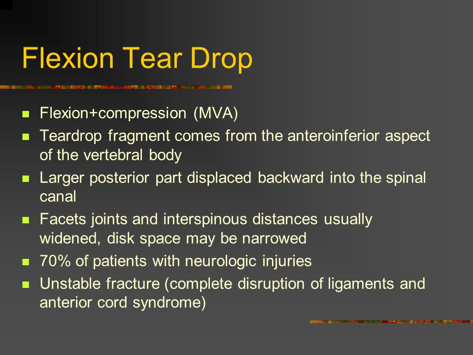 Flexion Tear Drop Flexion+compression (MVA)