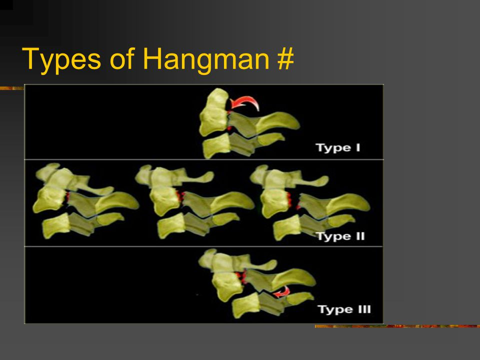 Types of Hangman #