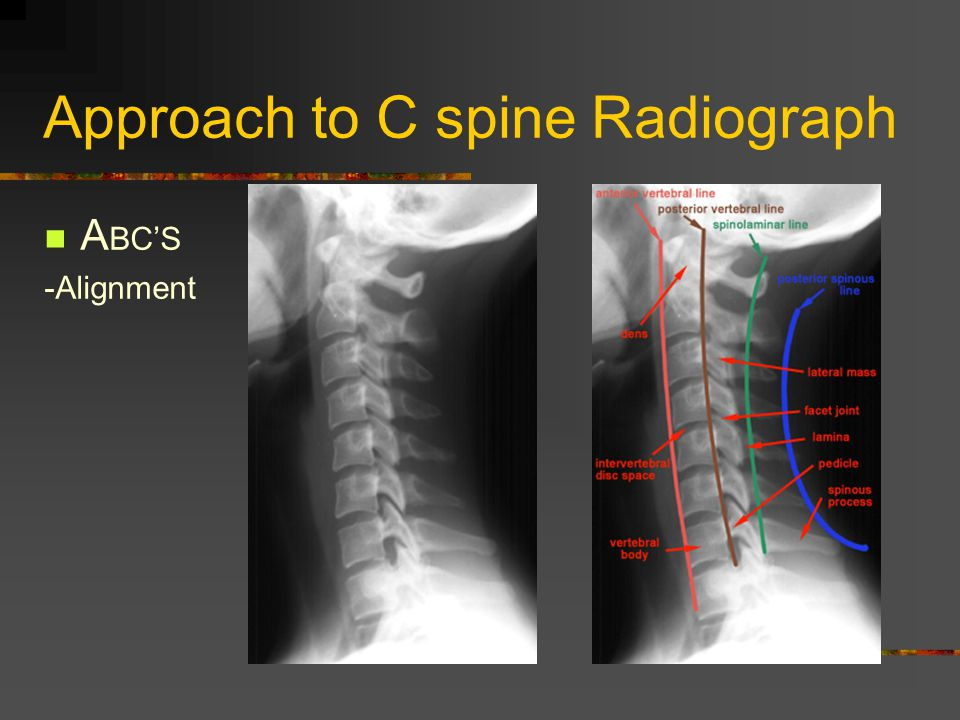Approach to C spine Radiograph