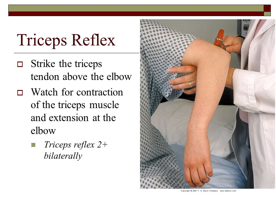 Triceps Reflex Strike the triceps tendon above the elbow