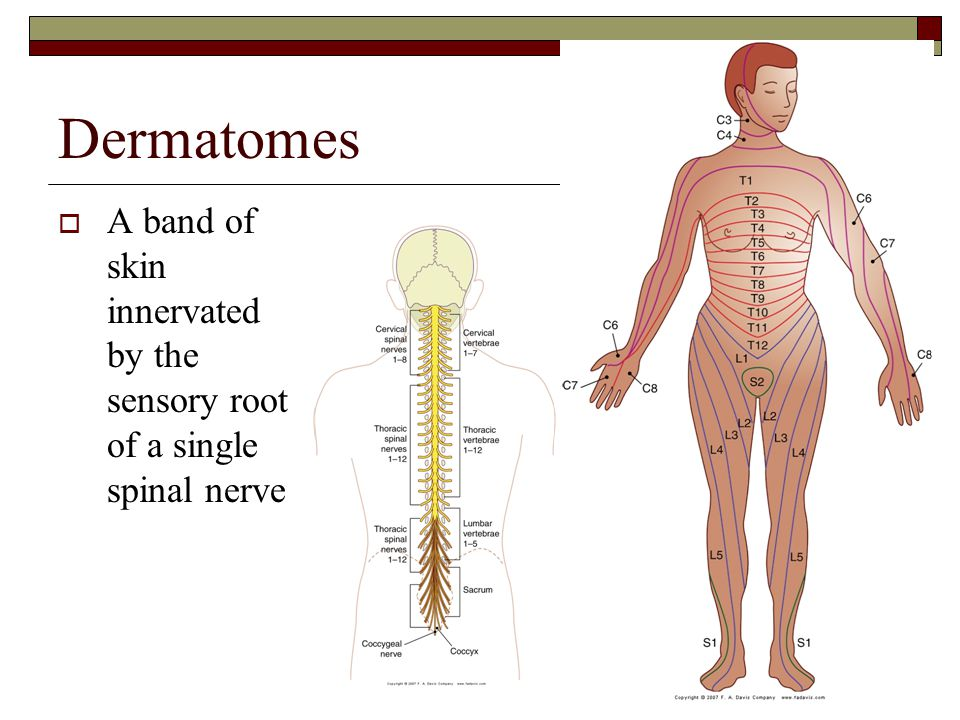 Dermatomes A band of skin innervated by the sensory root of a single spinal nerve