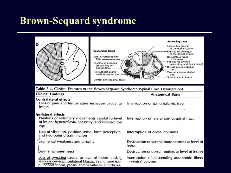 Brown-Sequard syndrome