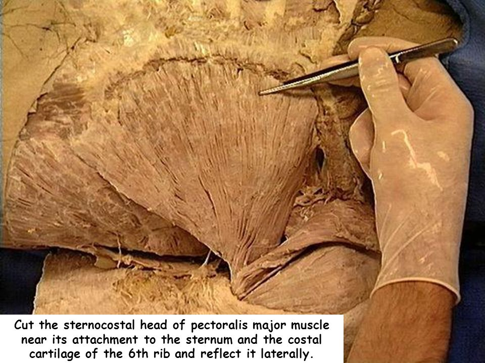 Cut the sternocostal head of pectoralis major muscle near its attachment to the sternum and the costal cartilage of the 6th rib and reflect it laterally.