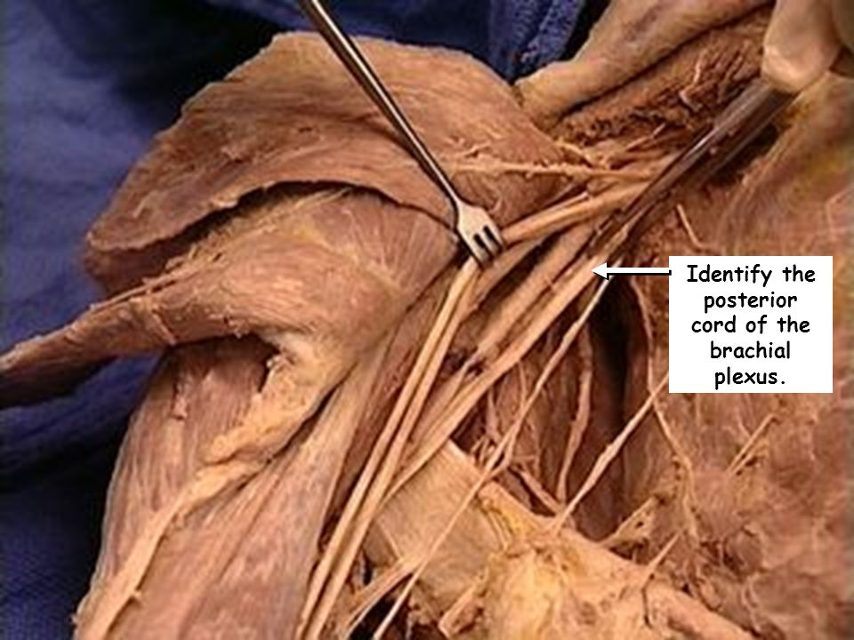 Identify the posterior cord of the brachial plexus.