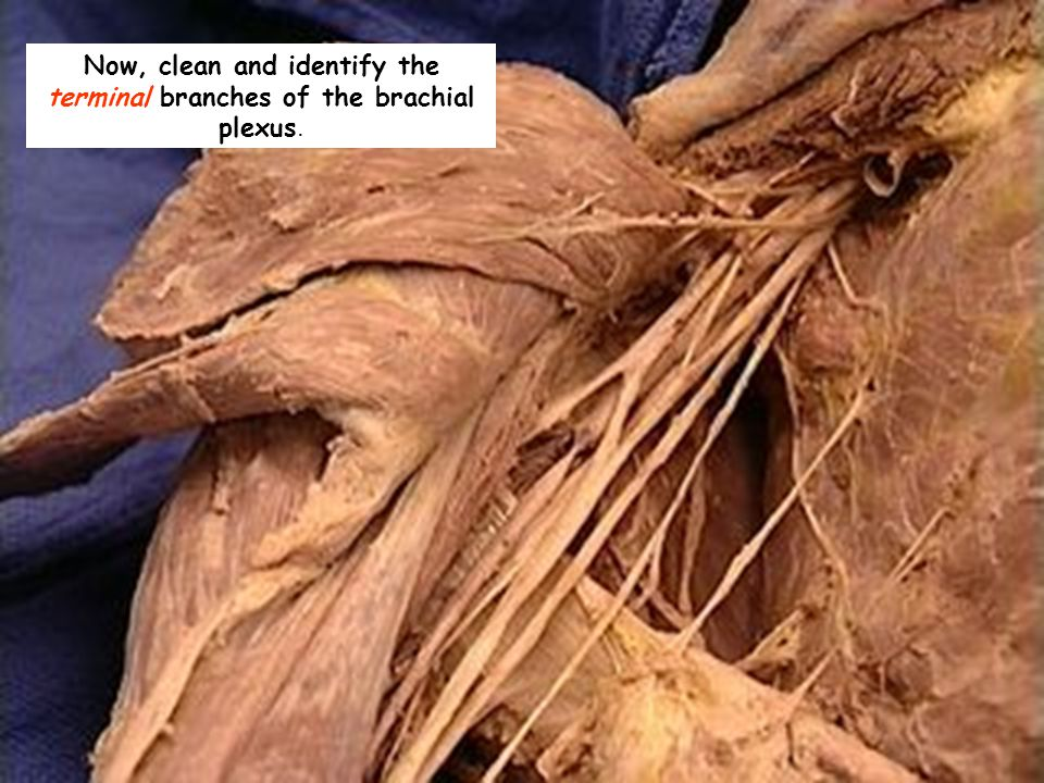 Now, clean and identify the terminal branches of the brachial plexus.