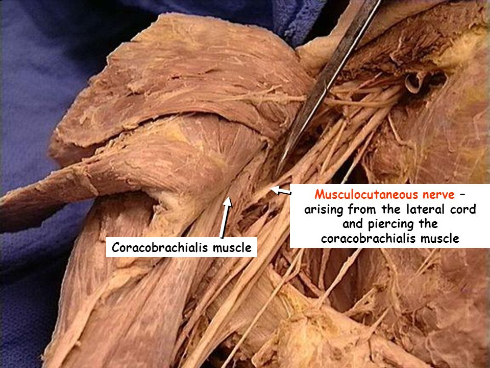 B C A B DISSECTION OF THE PECTORAL REGION AND AXILLA - ppt ...
