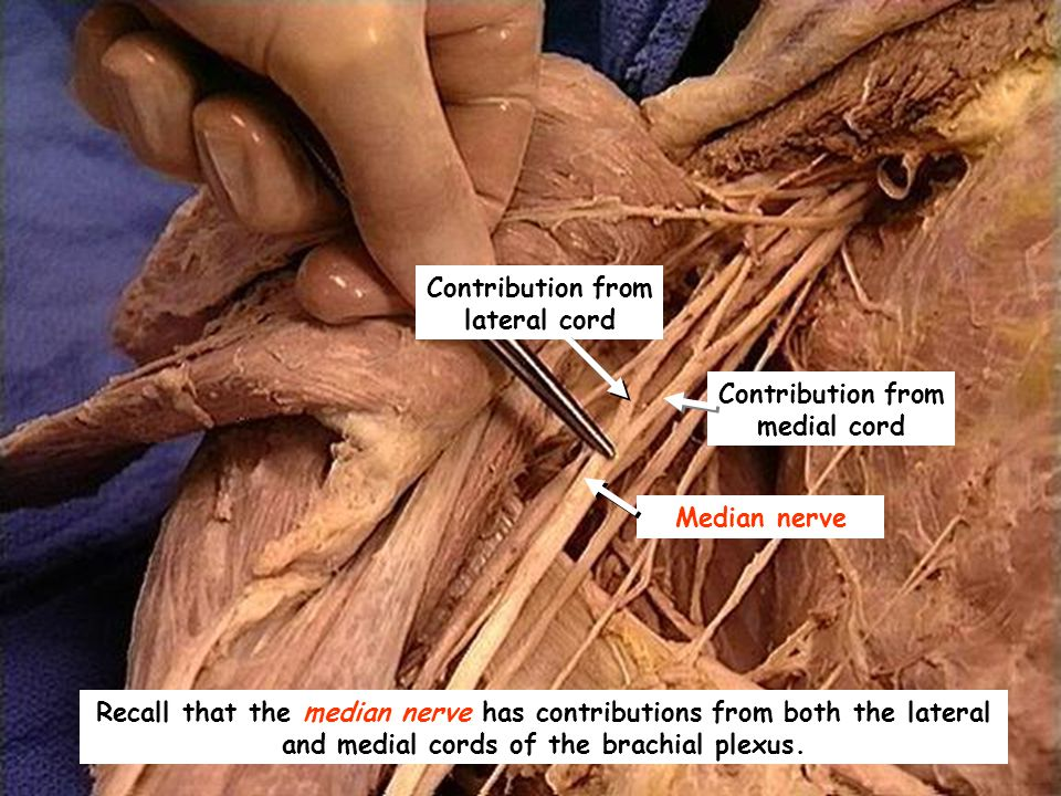 Contribution from lateral cord Contribution from medial cord