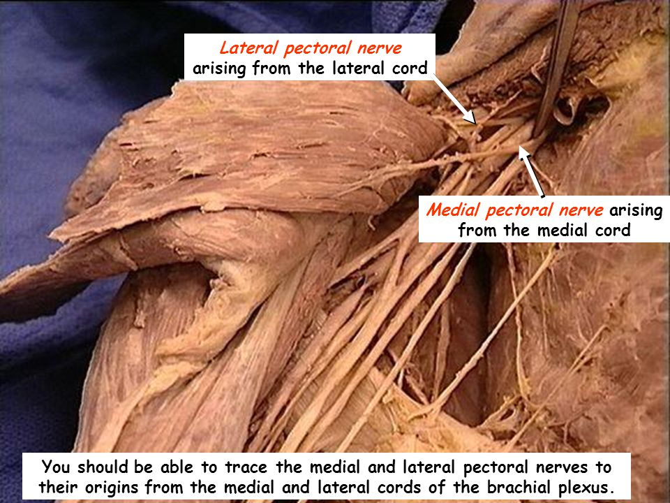 Lateral pectoral nerve arising from the lateral cord