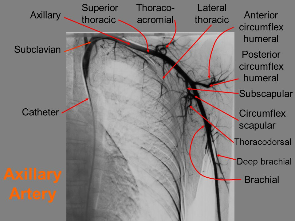 Axillary Artery Superior thoracic Thoraco- acromial Lateral thoracic