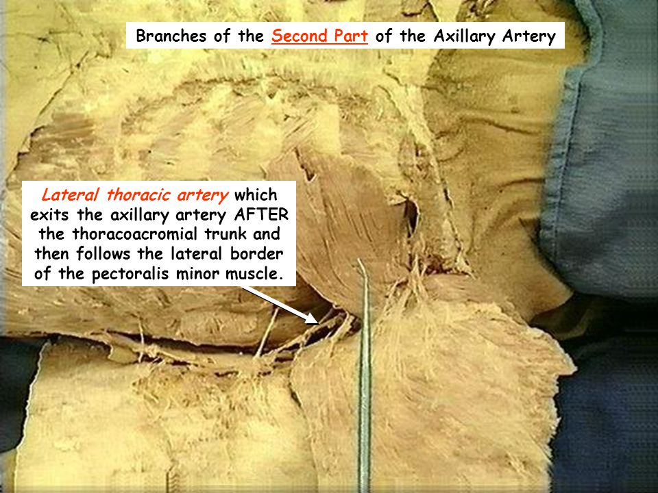 Branches of the Second Part of the Axillary Artery