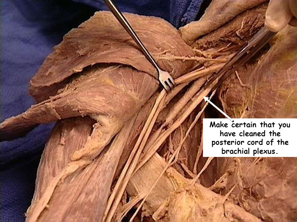 Make certain that you have cleaned the posterior cord of the brachial plexus.