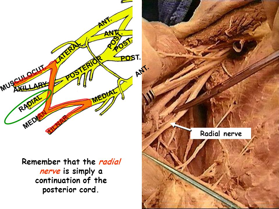 ANT. POST. LATERAL. POSTERIOR. MUSCULOCUT. AXILLARY. MEDIAL. RADIAL. MEDIAN. ULNAR. Radial nerve.