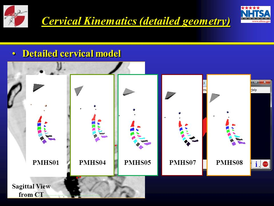 Cervical Kinematics (detailed geometry)