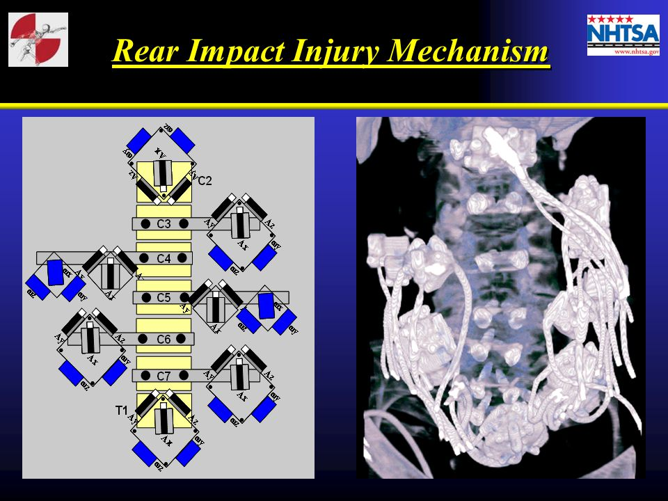 Rear Impact Injury Mechanism