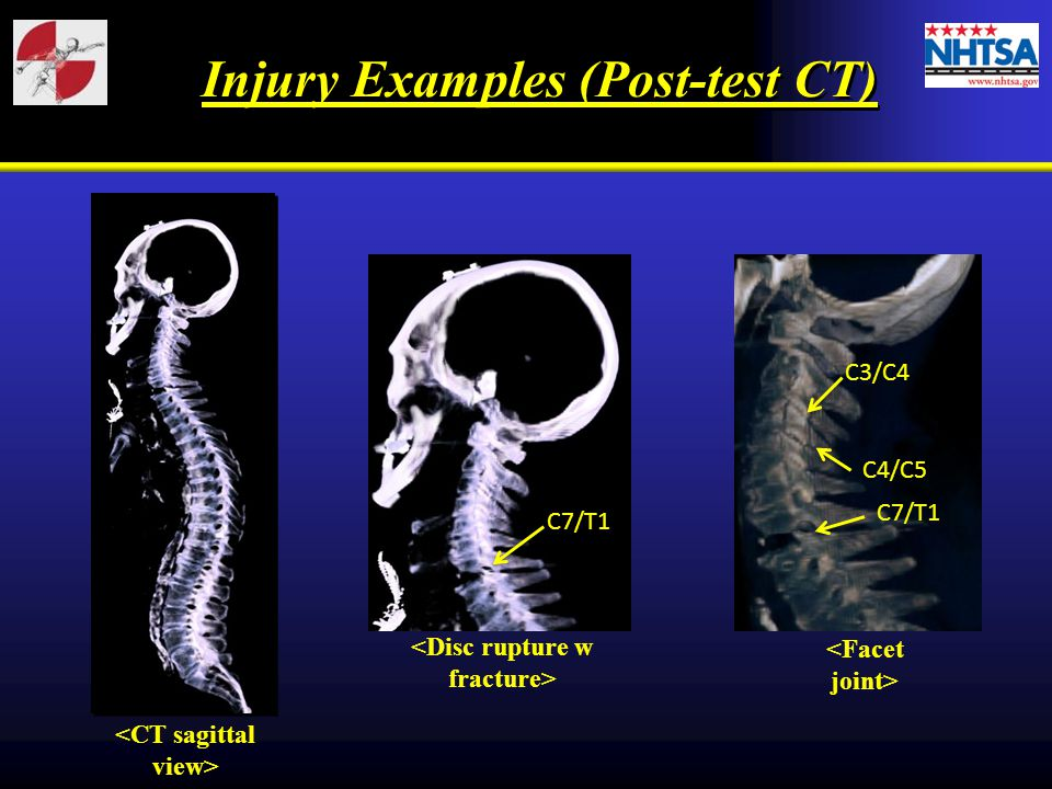Injury Examples (Post-test CT)