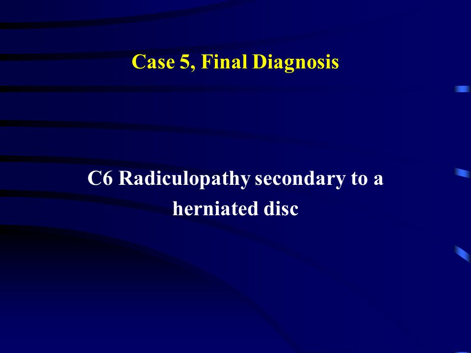 C6 Radiculopathy secondary to a
