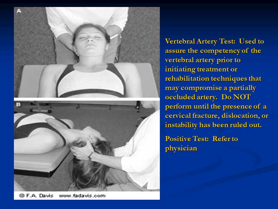 Vertebral Artery Test: Used to assure the competency of the vertebral artery prior to initiating treatment or rehabilitation techniques that may compromise a partially occluded artery. Do NOT perform until the presence of a cervical fracture, dislocation, or instability has been ruled out.