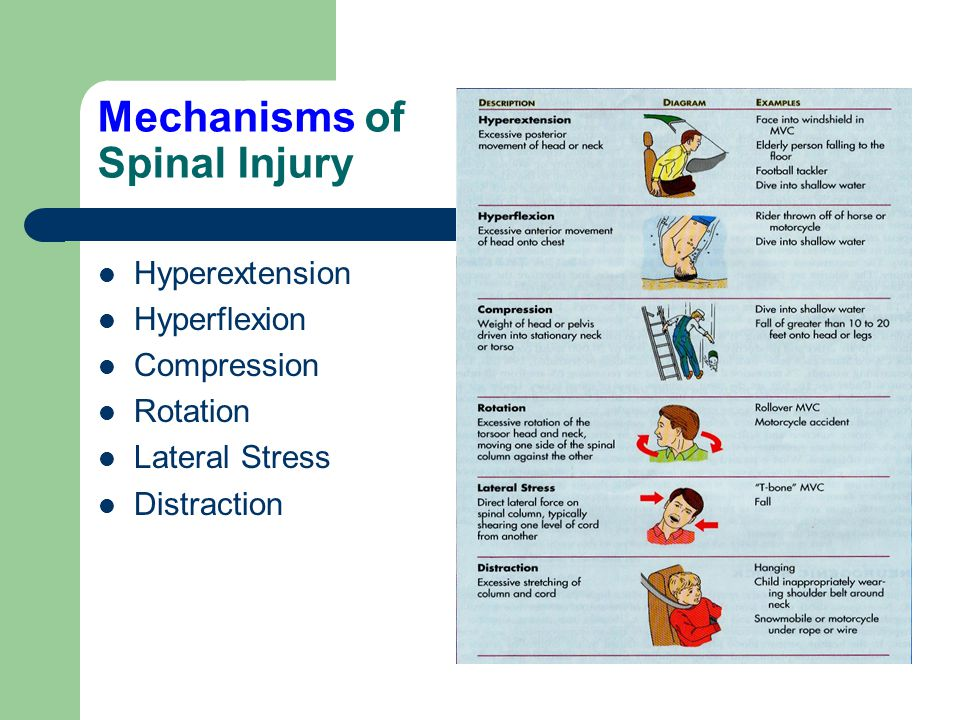 Mechanisms of Spinal Injury