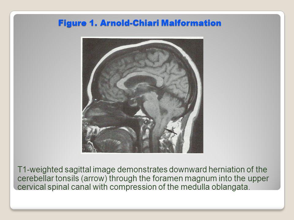 Figure 1. Arnold-Chiari Malformation