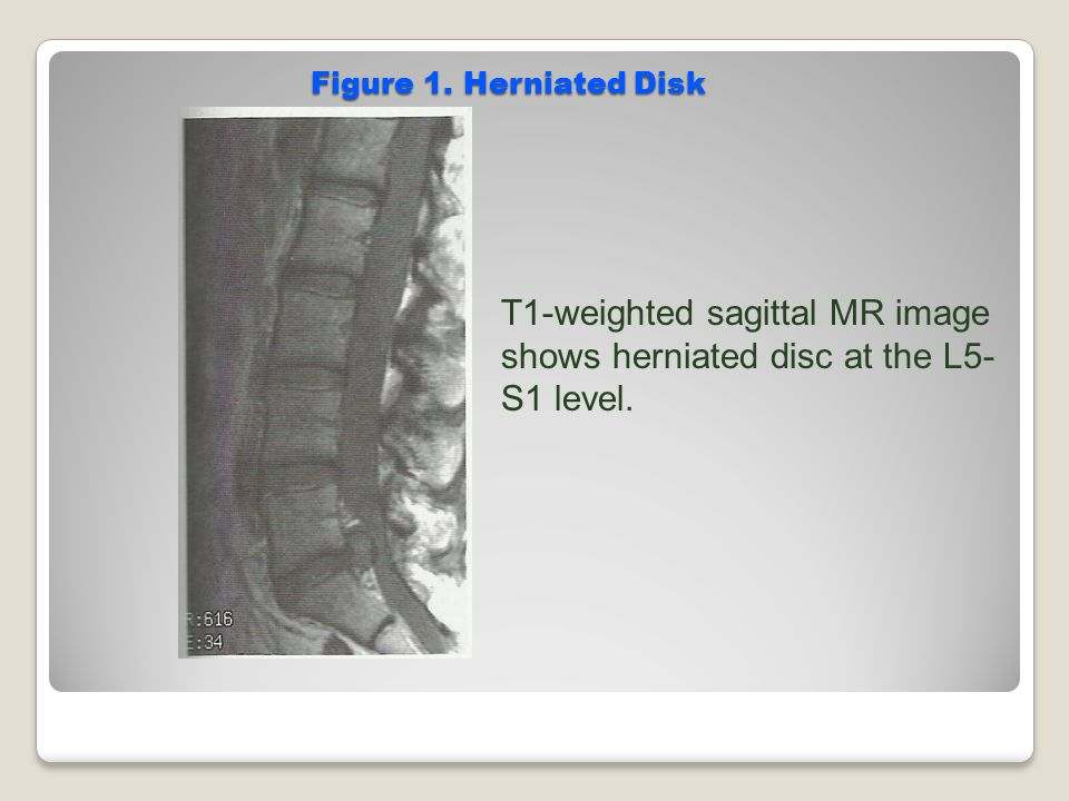 T1-weighted sagittal MR image shows herniated disc at the L5-S1 level.
