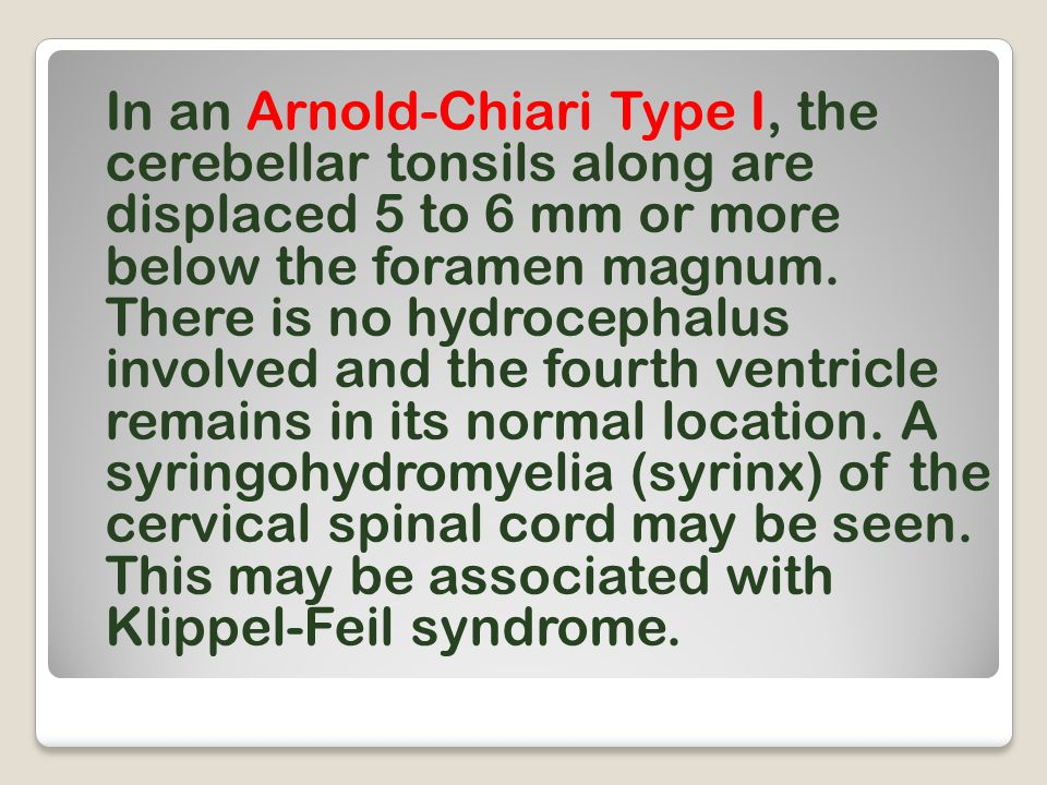 In an Arnold-Chiari Type I, the cerebellar tonsils along are displaced 5 to 6 mm or more below the foramen magnum.
