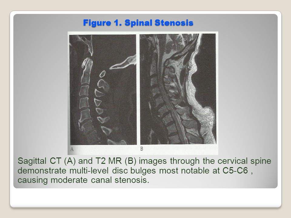 Figure 1. Spinal Stenosis