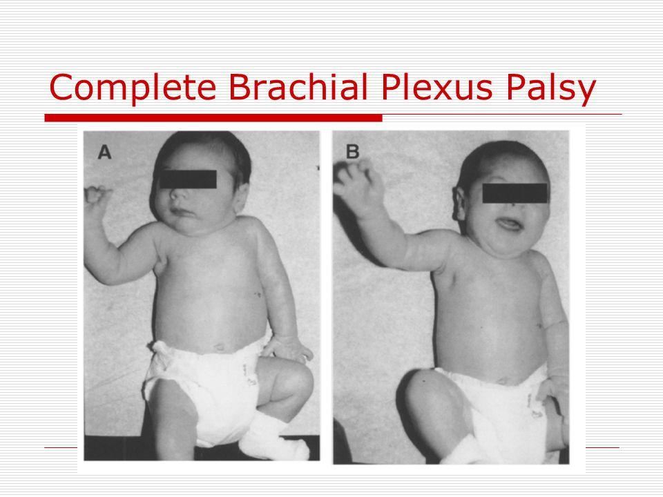 Complete Brachial Plexus Palsy