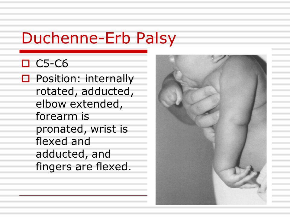 Duchenne-Erb Palsy C5-C6