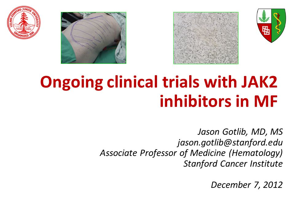 Ongoing clinical trials with JAK2 inhibitors in MF