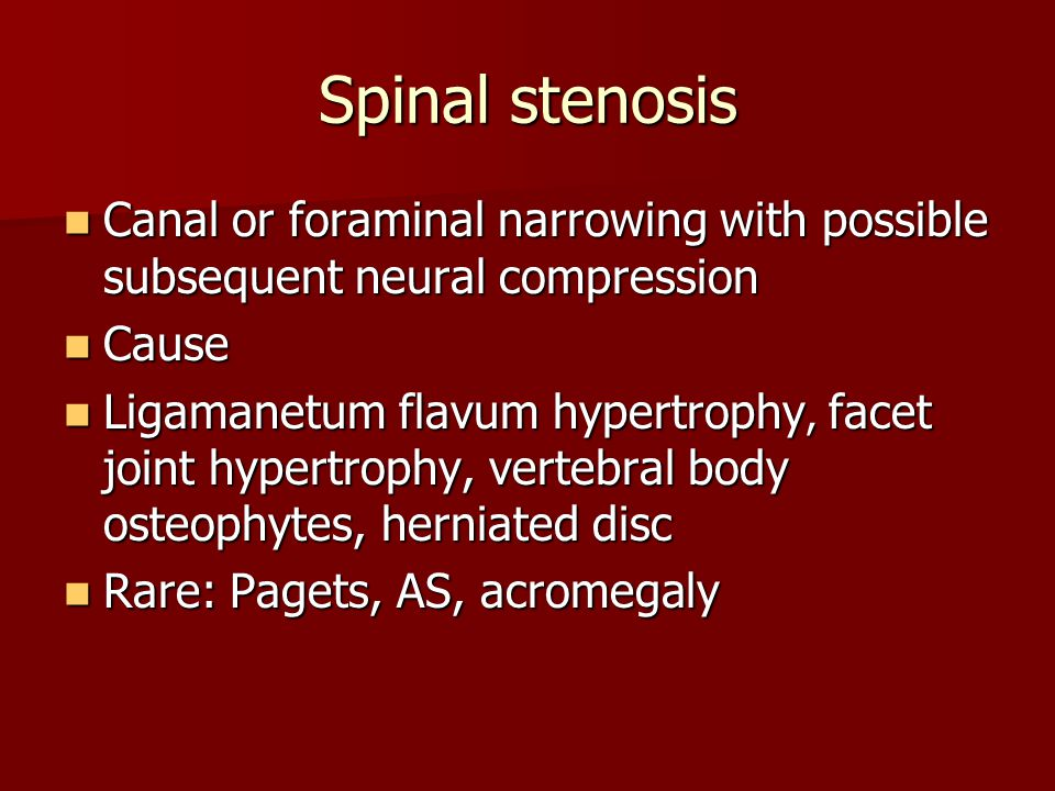 Spinal stenosis Canal or foraminal narrowing with possible subsequent neural compression. Cause.