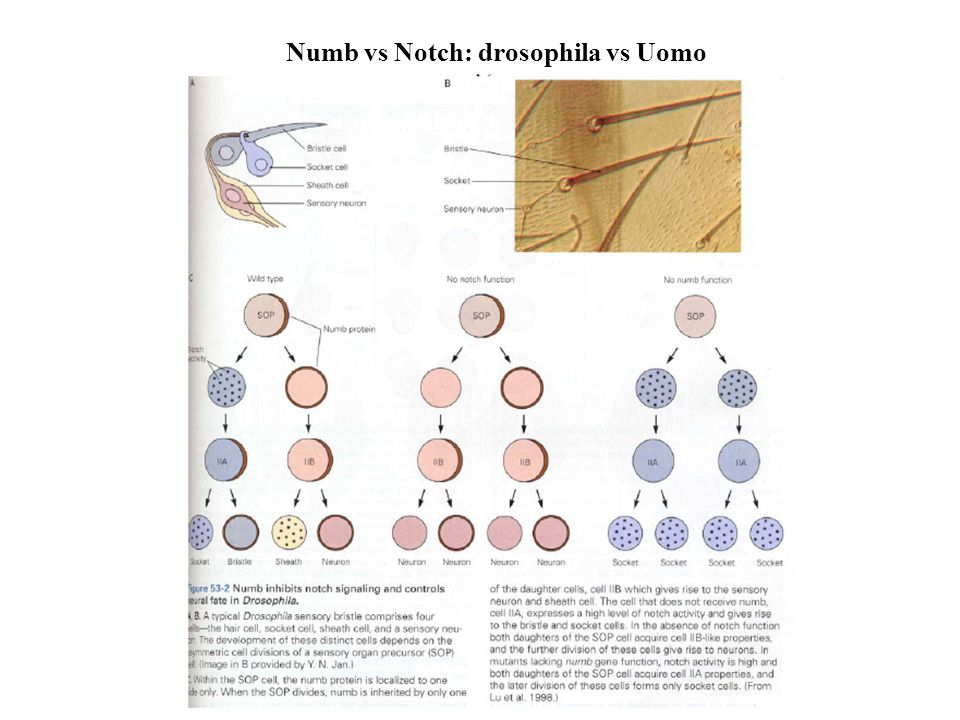 Numb vs Notch: drosophila vs Uomo