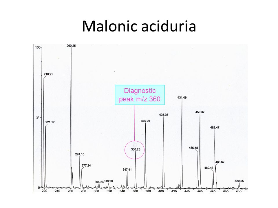 Malonic aciduria Diagnostic peak m/z 360