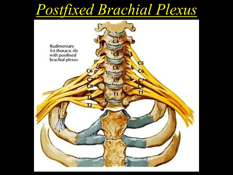 Postfixed Brachial Plexus