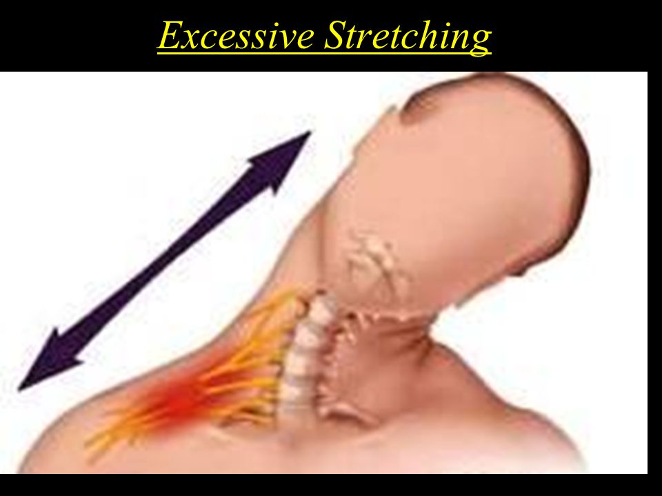 Excessive Stretching