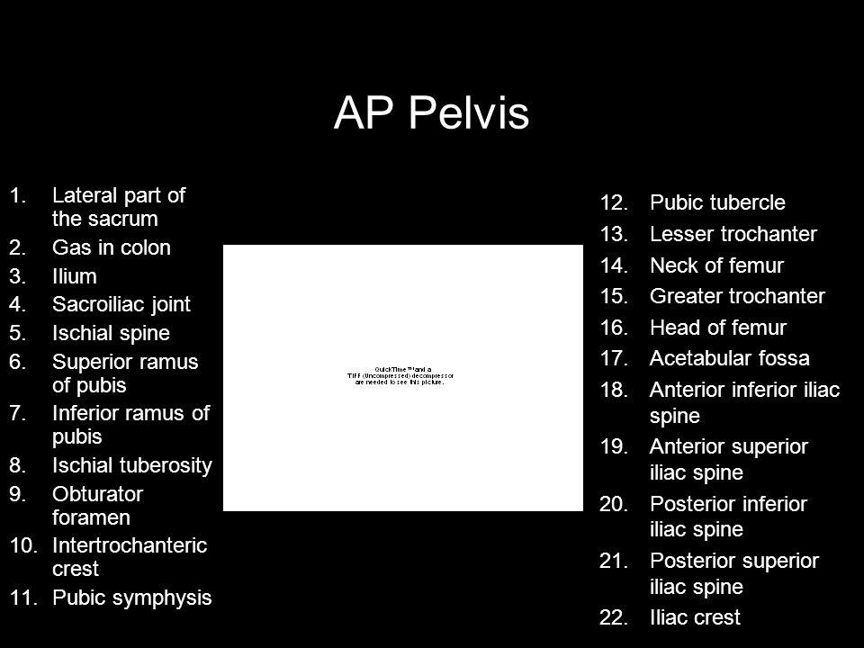 AP Pelvis Lateral part of the sacrum Pubic tubercle Lesser trochanter
