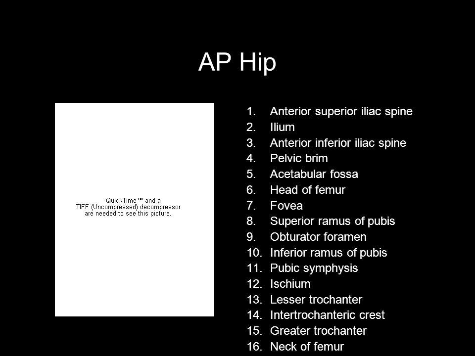 AP Hip Anterior superior iliac spine Ilium