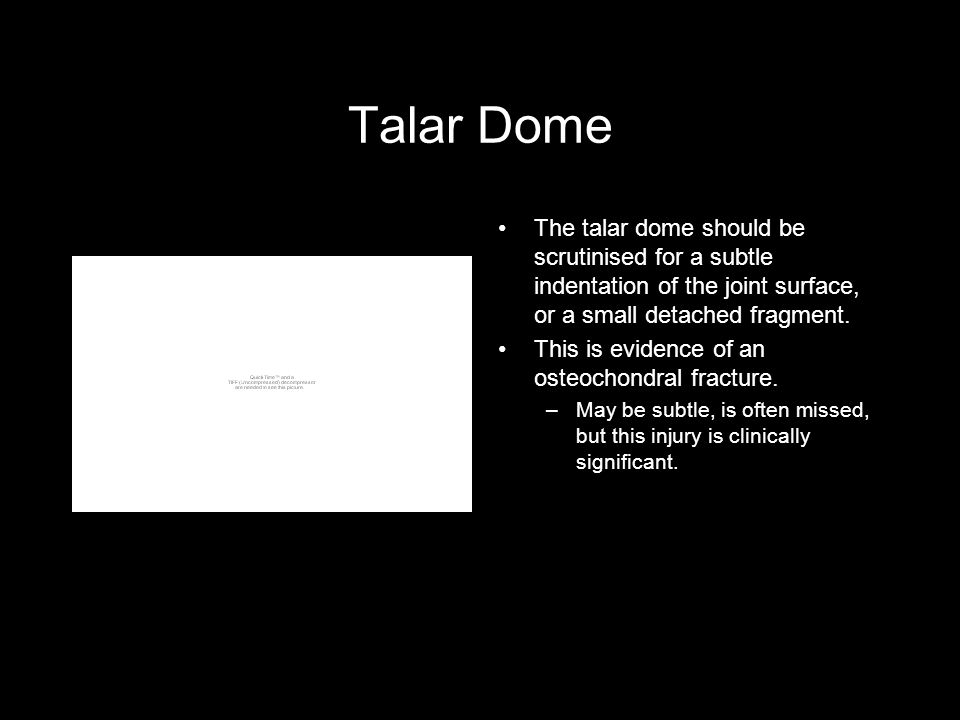 Talar Dome The talar dome should be scrutinised for a subtle indentation of the joint surface, or a small detached fragment.