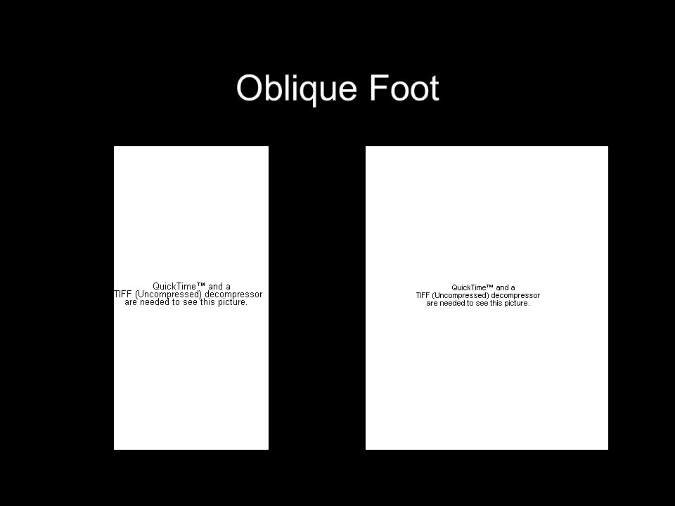 Oblique Foot