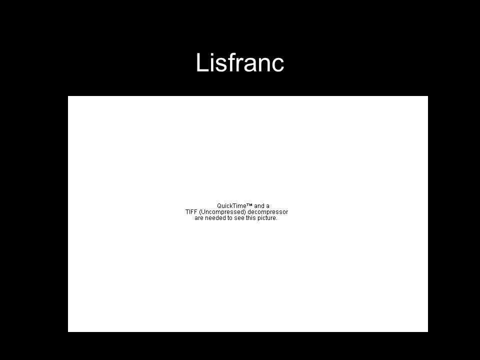 Lisfranc