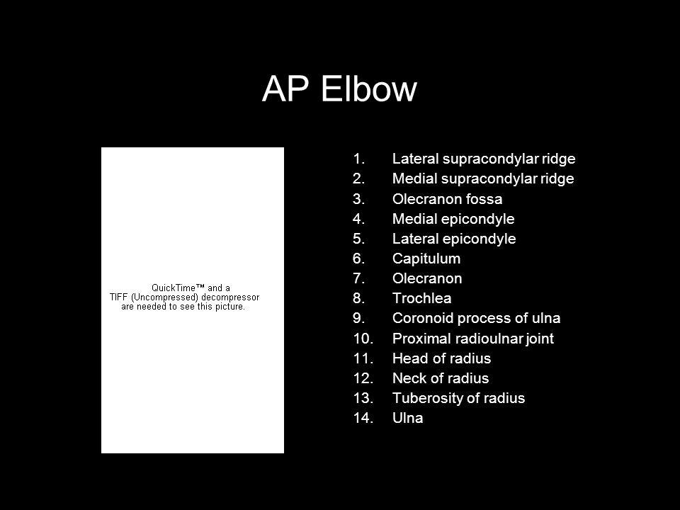 AP Elbow Lateral supracondylar ridge Medial supracondylar ridge