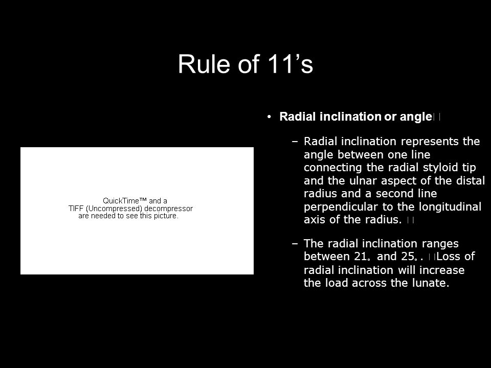 Rule of 11's Radial inclination or angle