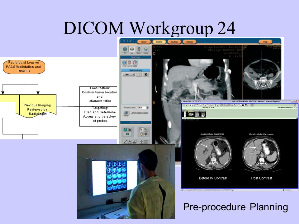 DICOM Workgroup 24 Pre-procedure Planning