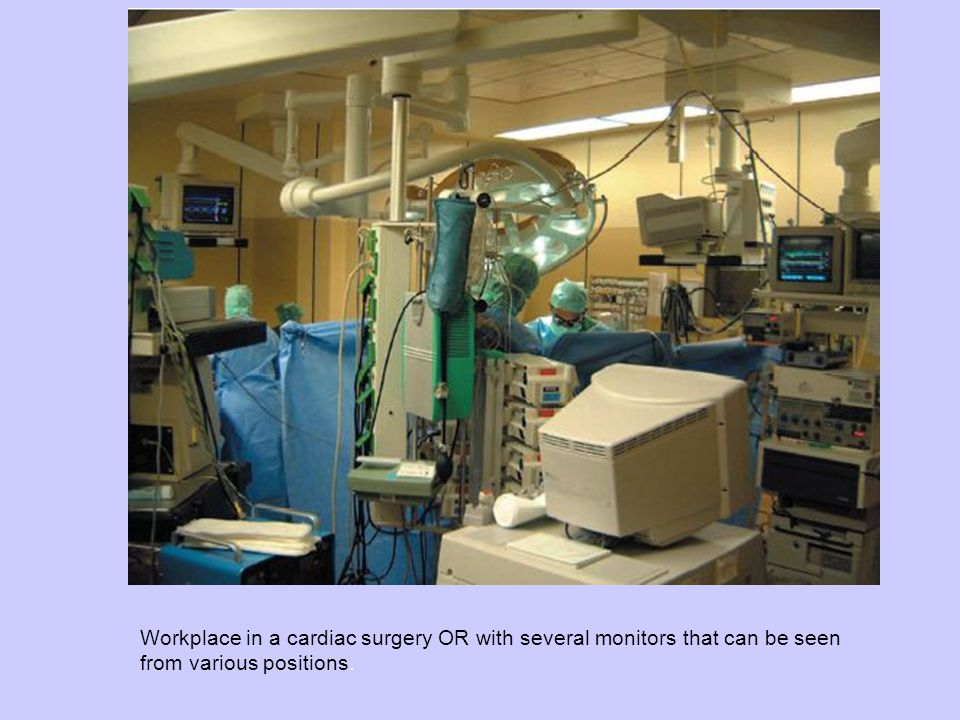 Workplace in a cardiac surgery OR with several monitors that can be seen