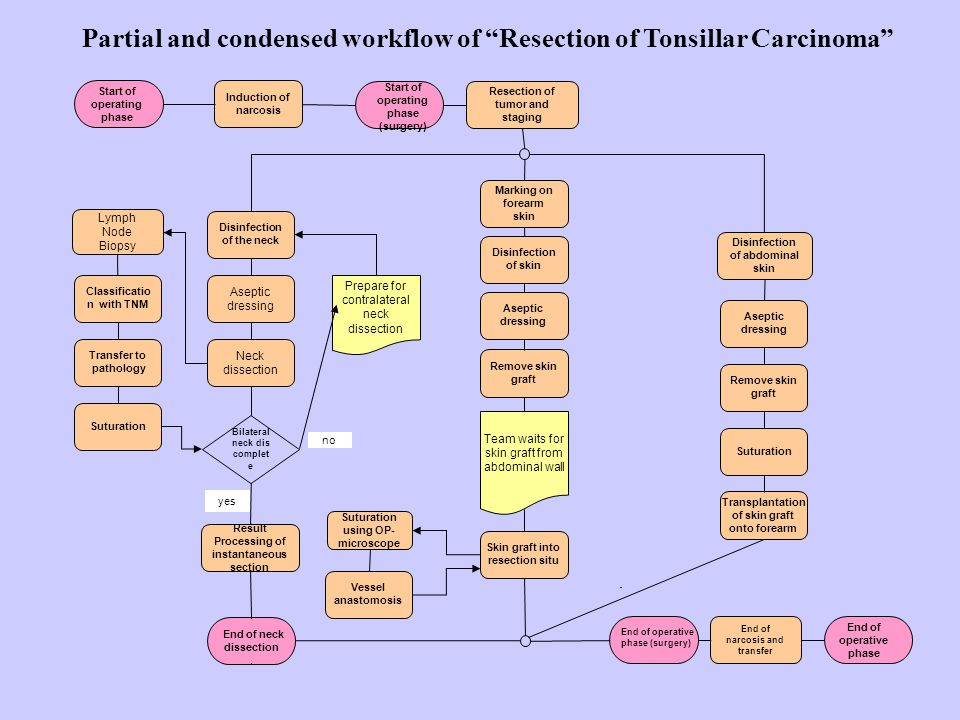 Partial and condensed workflow of Resection of Tonsillar Carcinoma