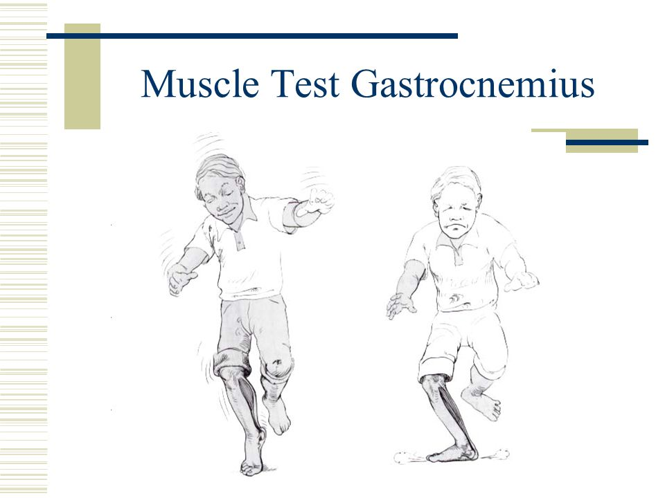 Muscle Test Gastrocnemius