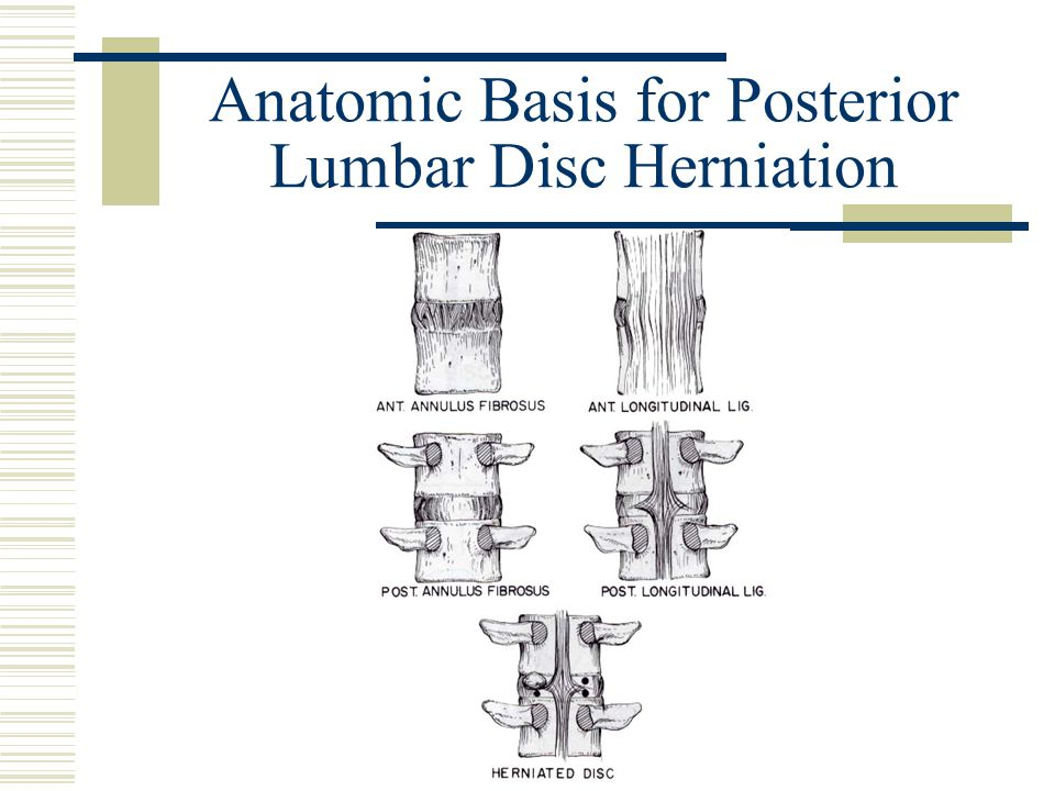 Anatomic Basis for Posterior Lumbar Disc Herniation