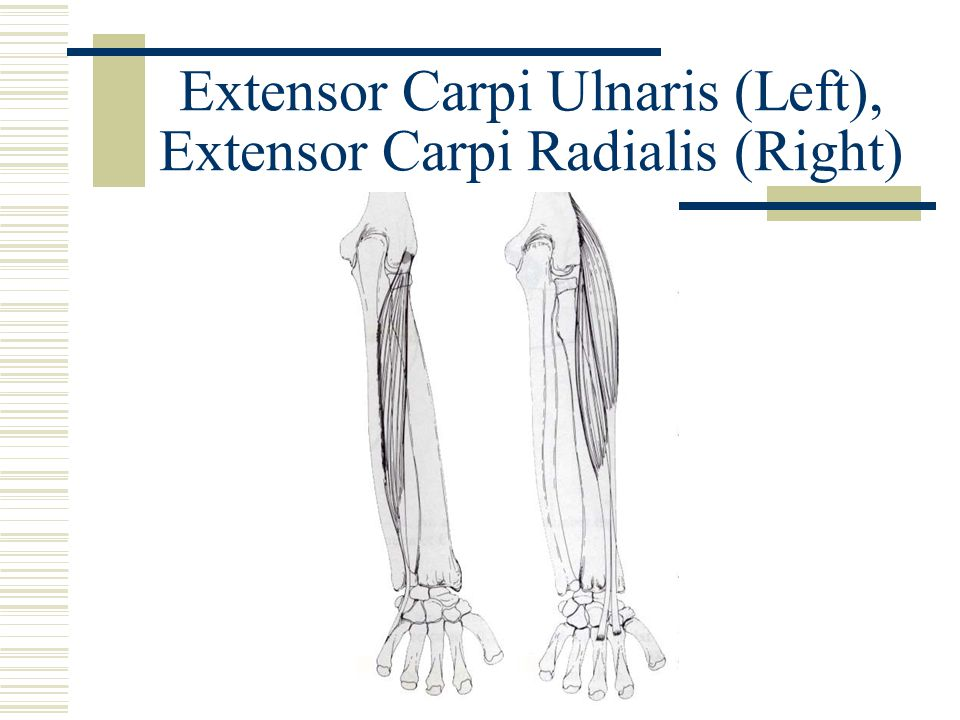 Extensor Carpi Ulnaris (Left), Extensor Carpi Radialis (Right)